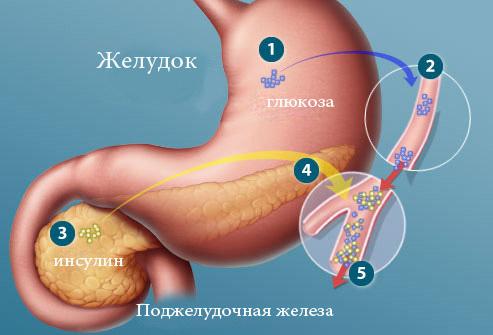 podjeludochnaya_jeleza
